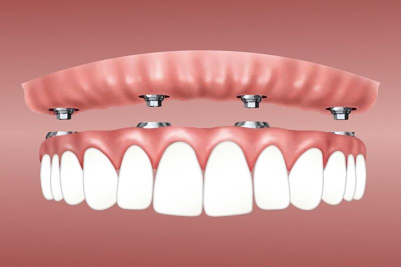 Zubni implantati najbolja su opcija