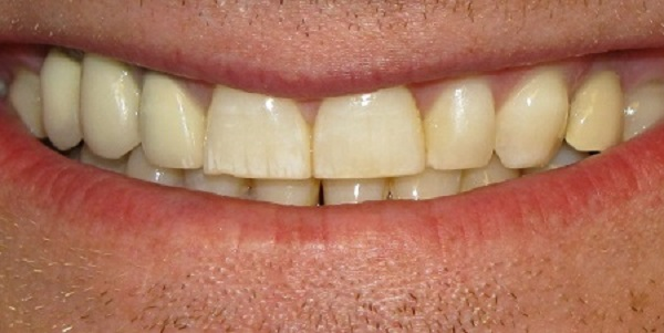 Granulom je infekcija zuba i zubnog mesa
